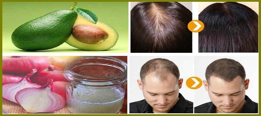 hair masks for hair growth