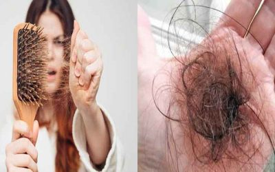Why Is My Hair Falling Out Female & Male 30+ Causes